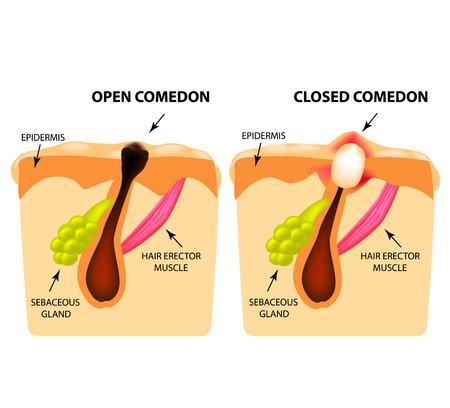 Tipi di acne. Comedoni aperti, comedoni chiusi, struttura della pelle. Infografiche. Illustrazione vettoriale su sfondo isolato.
