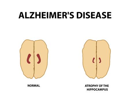 Atrophie des Hippocampus. Demenz. Alzheimer-Krankheit. Vektorillustration auf einem isolierten Hintergrund. Vektorgrafik