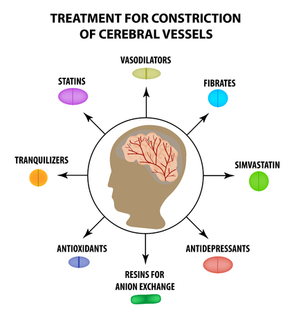 Treatment of cerebral vascular constriction. World Stroke Day. Infographics. Vector illustration on isolated background.