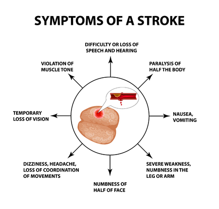 Symptoms of a stroke. World Stroke Day. Infographics. Vector illustration on isolated background