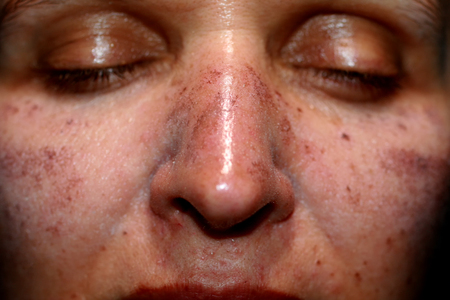 Pigmented spots on the face. Pigmentation on cheeks.