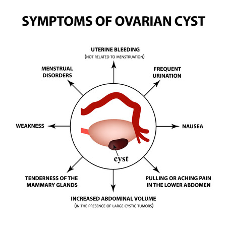 Symptoms of ovarian cyst. ovaries structure. Infographics. Vector illustration on isolated background