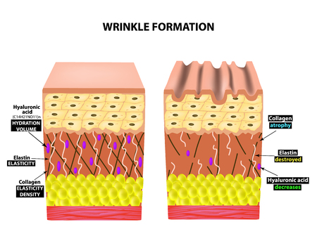 The appearance of wrinkles. Anatomical structure of the skin. Elastin, Hyaluronic acid, Collagen. Infographics. skin aging phenomena. Vector illustration on isolated background. Foto de archivo - 112776527