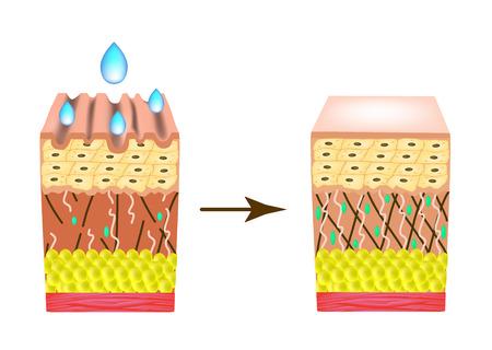 Falten auf der Haut. Kollagenmangel. Mit einem Tropfen Kosmetik auf die Haut einwirken. Infografiken. Vektorillustration auf isoliertem Hintergrund