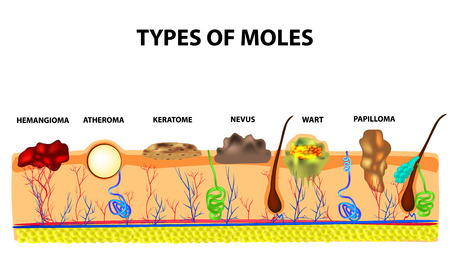 Types of moles. Nevus, pigment spot, papilloma, wart, keratoma, atheroma, hemangeoma. Mole. Anatomical structure of the skin and hair. Infographics Vector illustration on isolated background Illustration
