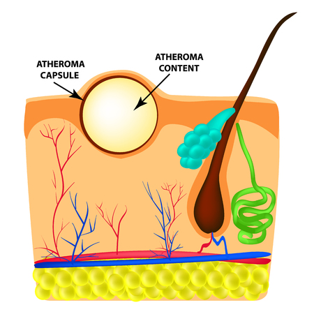 Atheroma structure. The structure of moles on the skin. Infographics. Vector illustration on isolated background.