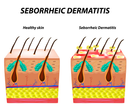 Seborrhea skin and hair. Dandruff seborrheic dermatitis. Eczema. Dysfunction of the sebaceous glands. Inflammatory skin disease. Anatomical structure. Infographics. Vector illustration.