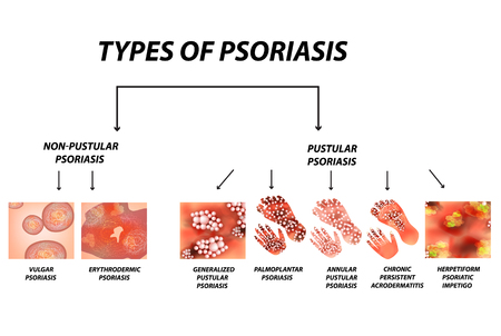 Types of psoriasis. Pustular and not pustular. Vulgar, erythroderma, erythrodermic psoriasis, persistent acrodermatitis, psoriatic impetigo. Eczema, skin disease dermatitis. Infographics. Vector illustration on isolated background.