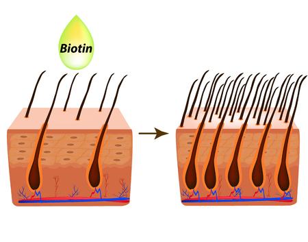 Treatment of alopecia. Vitamins hair. Biotin. Seborrhea skin and hair. Dandruff, seborrheic dermatitis. Baldness, hair growth, baldness Anatomical structure Infographics Vector illustration
