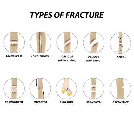 Arten von Fraktur. Knochenbruch eingestellt. Infografiken. Vektorillustration auf einem gezeichneten Hintergrund.