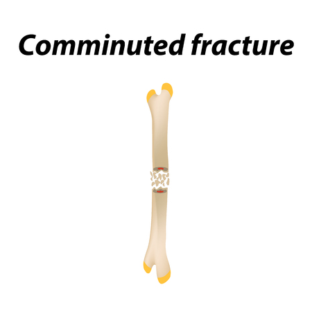 Comminuted fracture Bone. Infographics. Vector illustration on a lined background
