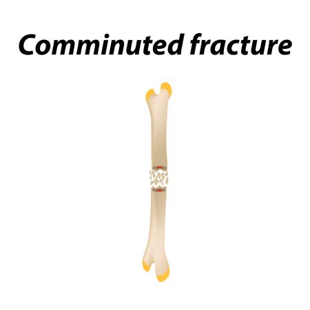 Fracture comminutive Os. Infographie. Illustration vectorielle sur un fond doublé Vecteurs