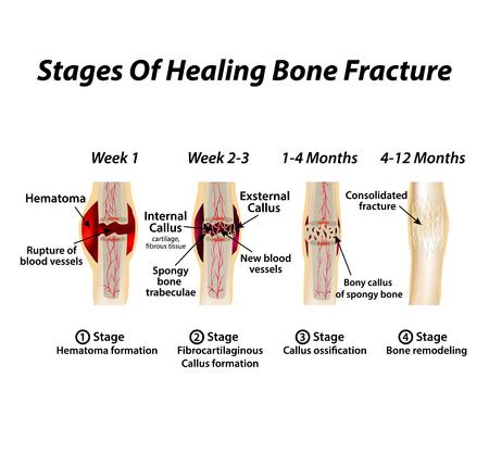 Etapas de la curación de la fractura ósea. Formación de callos. La fractura ósea. Infografía. Ilustración de vector sobre fondo aislado Ilustración de vector