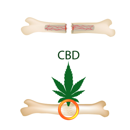 Effect of cannabis oil on bones and fractures. Cannabinoid treatment. Marijuana properties. Vector illustration on isolated background. Illustration