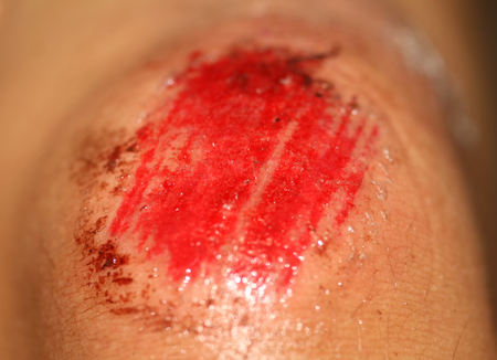 The wound is bloody on the knee. Injury of the knee