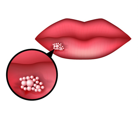 Herpes on the lip. Infographics. Vector illustration on isolated background.