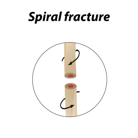 Spiral Bone Fracture. Infographics. Vector illustration on a lined background