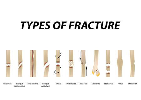 Tipi di frattura. Insieme dell'osso di frattura. Infografica. Illustrazione vettoriale su sfondo isolato.
