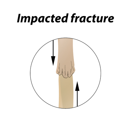 Impacted fracture Bone. Infographics. Vector illustration on a lined background