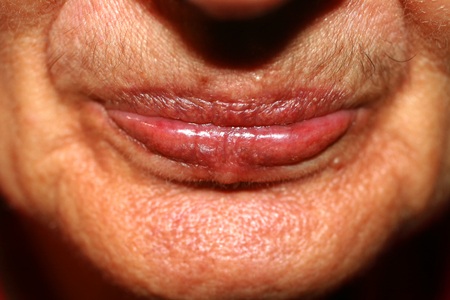 Lips with lowered corners. Wrinkles on the lips. Nasolabial folds