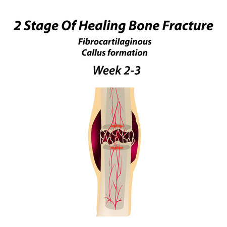 2 Stage Of Healing Bone Fracture. Formation of callus. The bone fracture. Infographics. Vector illustration on isolated background