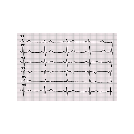 Cardiogram. Heartbeat. The graph on graph paper. Vector illustration on isolated background.