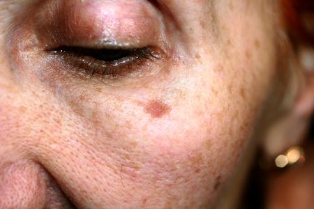Pigmentatie op het gezicht. Bruine vlek op wang. Pigmentvlek op de huid. Stockfoto