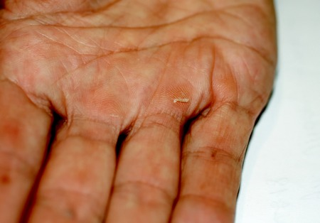Calluses on the palm and fingers of the hand. Labor corns