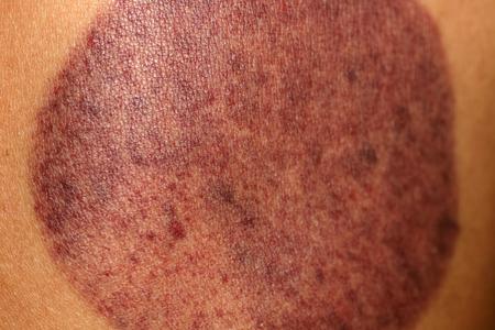 Eine Spur auf der Haut von der Vakuumdose. Prellung. Kann massieren.