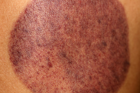 Un rastro en la piel de la lata de vacío. Moretón. Puede masajear.