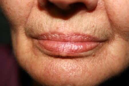 Rides sur les lèvres et le menton. Sillons nasogéniens. Moustache duveteuse. Banque d'images