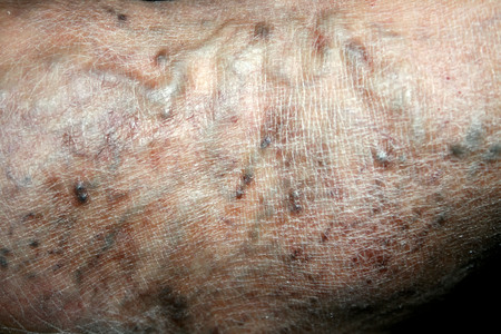 Varicose veins. Phlebeurysm. Thrombophlebitis. leg in veins