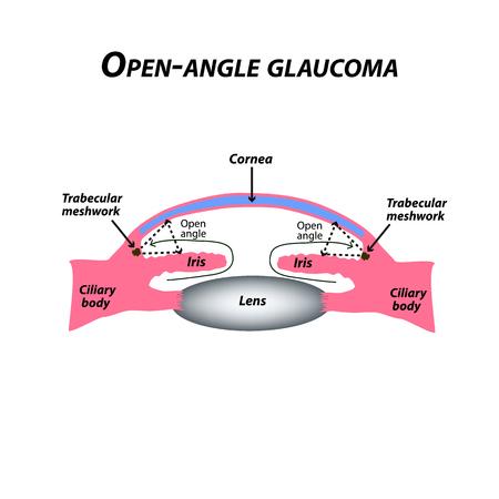 Glaucoma ad angolo aperto. Un tipo comune di glaucoma. La struttura anatomica dell'occhio. Infografica. Illustrazione vettoriale su sfondo isolato