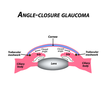 Closed angle glaucoma. A common type of glaucoma. The anatomical structure of the eye. Infographics. Vector illustration on isolated background. Ilustração