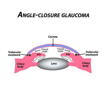 Engwinkelglaukom. Eine häufige Art von Glaukom. Die anatomische Struktur des Auges. Infografiken. Vektorillustration auf lokalisiertem Hintergrund. Vektorgrafik