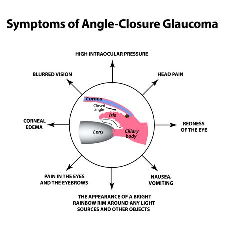 The symptoms of closed angle glaucoma. World glaucoma day. The anatomical structure of the eye. Infographics. Vector illustration on isolated background
