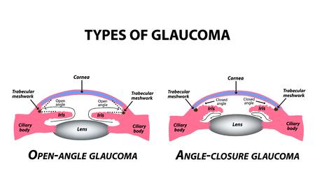 Tipi di glaucoma. Glaucoma ad angolo aperto e ad angolo chiuso. La struttura anatomica dell'occhio. Infografica. Illustrazione vettoriale su sfondo isolato