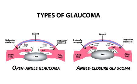Types of glaucoma. Open-angle and angle-closure glaucoma. The anatomical structure of the eye. Infographics. Vector illustration on isolated background Ilustração