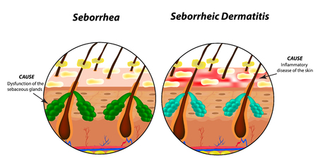 Causes Seborrhea skin and hair. Dandruff seborrheic dermatitis. Eczema. Dysfunction of the sebaceous glands. Inflammatory skin disease. Anatomical structure. Infographics. Vector illustration