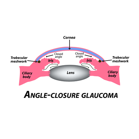 Closed angle glaucoma. A common type of glaucoma. The anatomical structure of the eye. Infographics. Vector illustration on isolated background Illustration