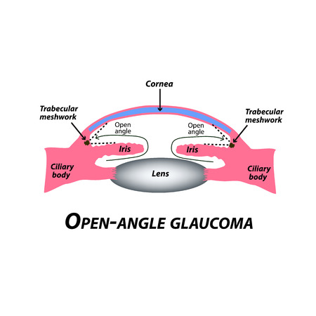 Open-angle glaucoma. A common type of glaucoma. The anatomical structure of the eye. Infographics. Vector illustration on isolated background.