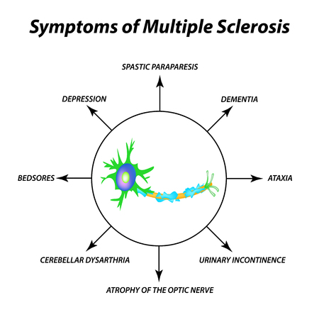 Symptoms of multiple sclerosis. The destruction of the myelin sheath on the axon. Damaged myelin. World Multiple Sclerosis Day. Infographics. Vector illustration on isolated background