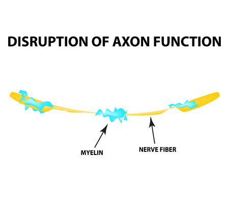 The destruction of the myelin sheath on the axon. Damaged myelin. Neuron affected by multiple sclerosis. World Multiple Sclerosis Day. Infographics. Vector illustration on isolated background