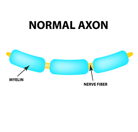 Normal axon. Healthy myelin. World Multiple Sclerosis Day. Infographics. Vector illustration on isolated background