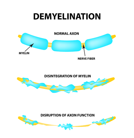 The destruction of the myelin sheath on the axon. Damaged myelin. Neuron affected by multiple sclerosis. World Multiple Sclerosis Day. Infographics. Vector illustration on isolated background. Illustration