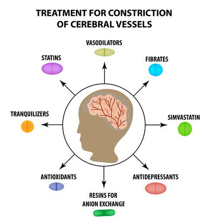 Behandlung von zerebraler Gefäßverengung. Welttag des Schlaganfalls. Infografiken. Vektorillustration auf lokalisiertem Hintergrund.