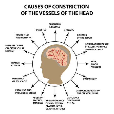Causes of narrowing of cerebral vessels. World Stroke Day. Infographics. Vector illustration on isolated background.