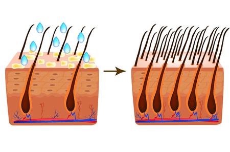 Treatment of alopecia. Vitamins hair. Biotin. Seborrhea skin and hair. Dandruff, seborrheic dermatitis. Baldness, hair growth, baldness. Anatomical structure. Infographics. Vector illustration.