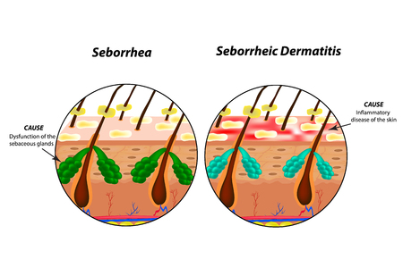 Causes Seborrhea skin and hair. Dandruff seborrheic dermatitis. Eczema. Dysfunction of the sebaceous glands. Inflammatory skin disease. Anatomical structure. Infographics. Vector illustration
