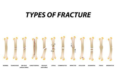 Tipi di frattura. Insieme dell'osso di frattura. Infografica. Illustrazione vettoriale su sfondo isolato